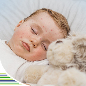 Čo je šiesta choroba a jej príznaky u detí