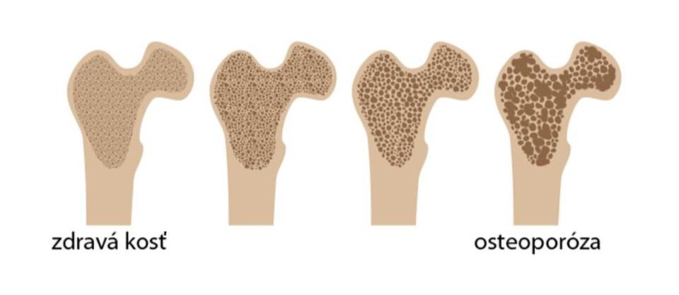 zdravá kosť vs. osteoporóza
