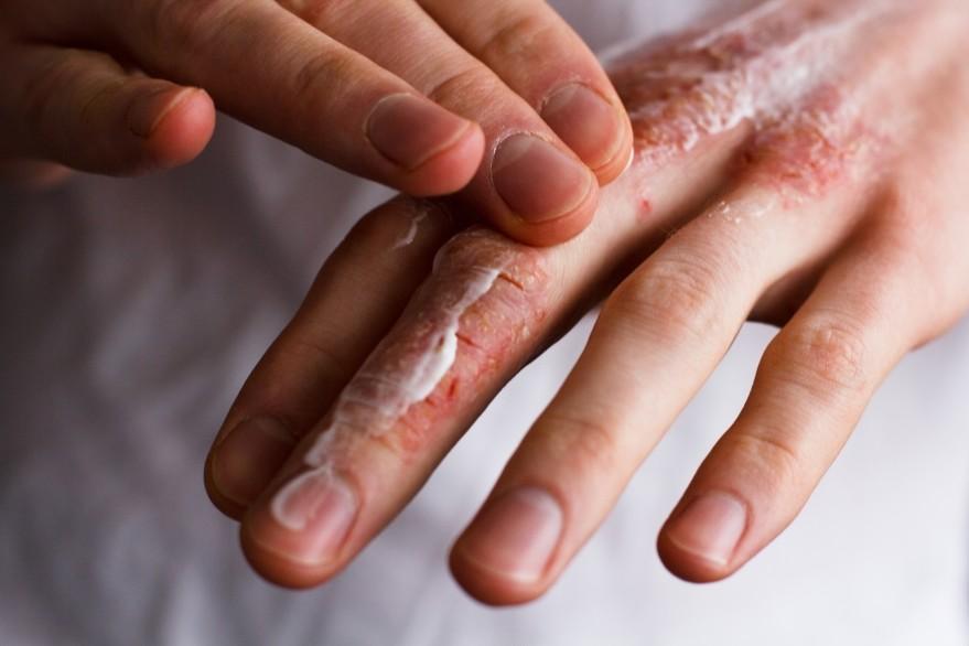 Prevencia suchej pokožky